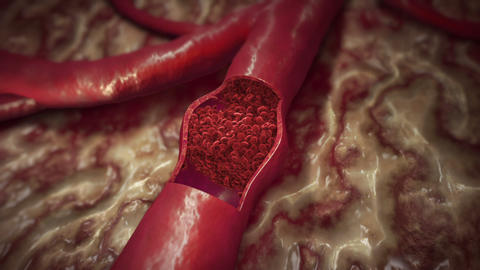 Blood Clot Animation