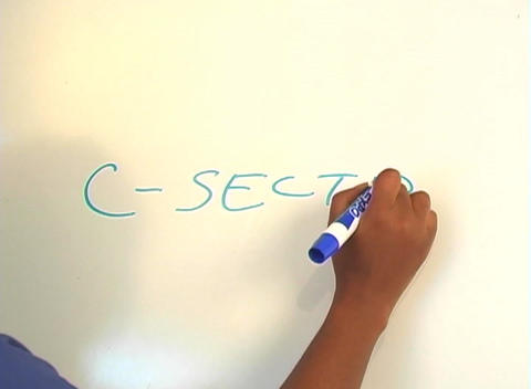 "Beautiful Nurse Writes ""C-Section"" on a White Board (close-up) Footage"