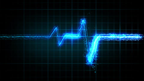 EKG heart monitor. 3 colors Animation