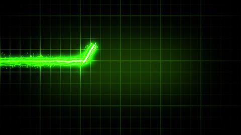 EKG heart monitor. 3 colors Stock Video Footage