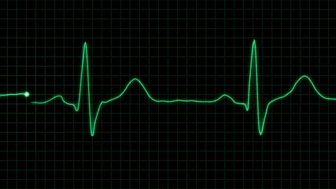 real form cardiogram with alpha loop Stock Video Footage