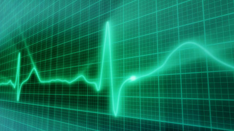 EKG electrocardiogram pulse real waveform loop Stock Video Footage