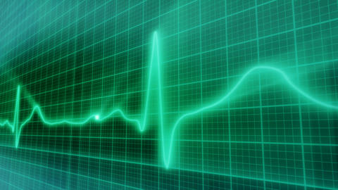 EKG Electrocardiogram Pulse Real Waveform Loop stock footage