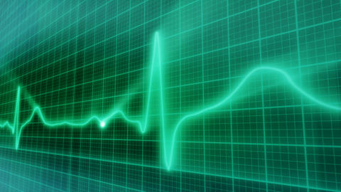 EKG electrocardiogram pulse real waveform loop Animation