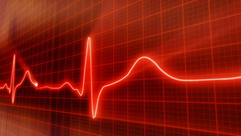 seamless loop red background EKG electrocardiogram Stock Video Footage