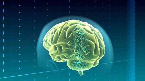 Brain Ab HD Stock Video Footage