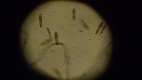 Paramecium Caudatum stock footage