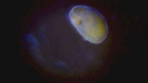 Plankton in Microscope Stock Video Footage