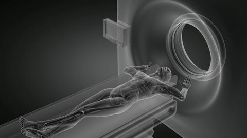 MRI examination Stock Video Footage