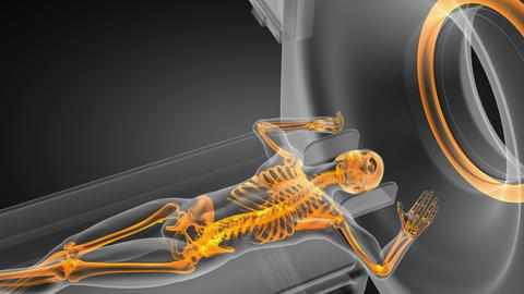 MRI examination Animation