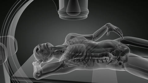 x-ray examination Animation
