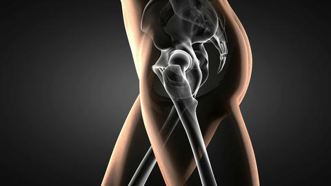 loop hip radiography scan Animation