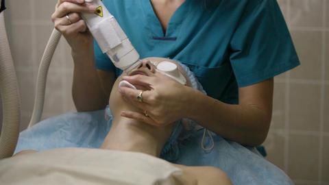 Laser skin treatment Stock Video Footage