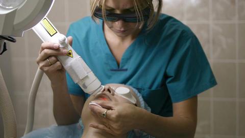 Laser skin treatment Footage