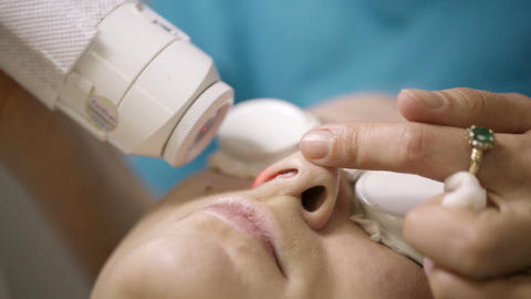 Patient undergoing skin treatment with a laser Stock Video Footage