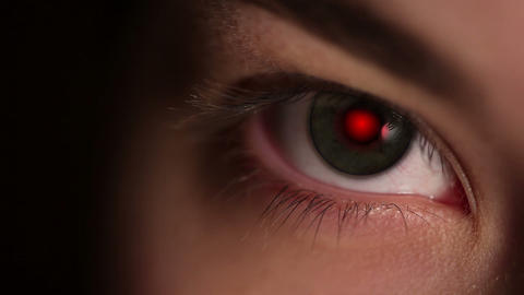 Red Pupil Of The Eye stock footage