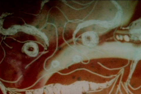 LSD Causes Hallucinations In The 1970s stock footage