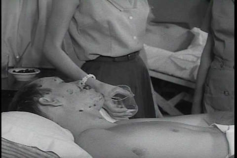 Advances in treating burn victims in the 1950s Live Action
