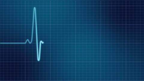 EKG heart monitor Stock Video Footage