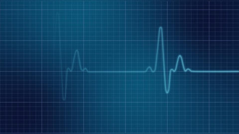 EKG heart monitor Stock Video Footage