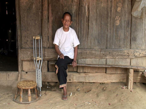 Hmong Amputee Footage
