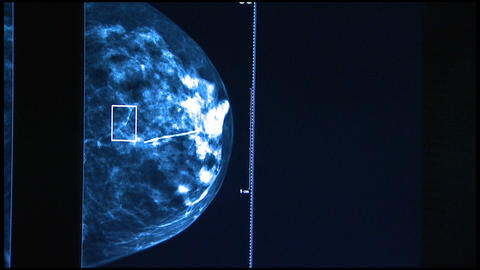 Medical Imaging Checking For Breast Cancer stock footage