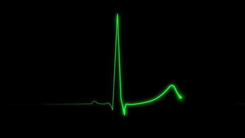 Cardiogram 60 bpm Stock Video Footage
