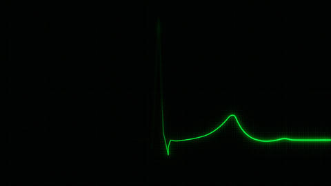 Cardiogram with grid Stock Video Footage