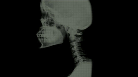 xray scan on the neck Stock Video Footage