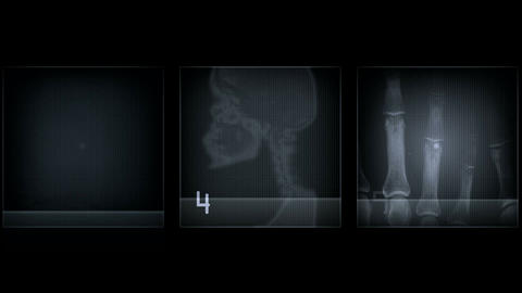 x-ray inspection Stock Video Footage