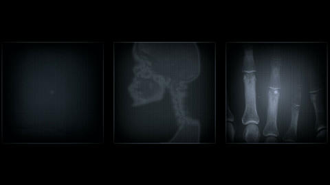 x ray Stock Video Footage