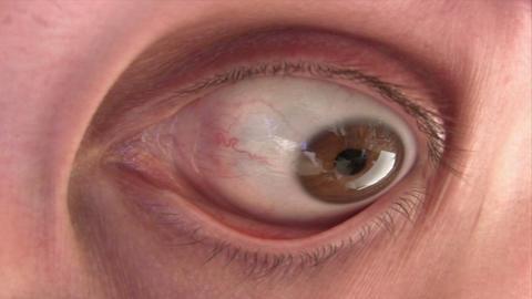 Disturbing Eye Footage