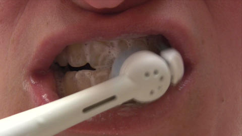 Dental Hygiene Footage