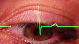 Eyeball Detail Stock Video Footage