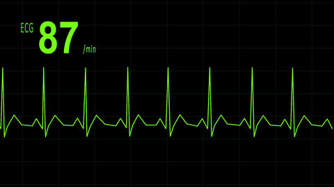 EKG animation heartbeat Animation