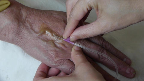 Medical Injection into the patient's hand Animation