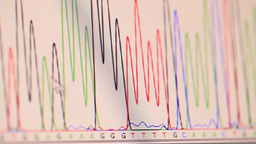 genetic chromatogram Footage