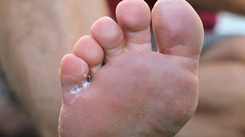 Applying Special Ointment To Athletes Foot Fungus stock footage