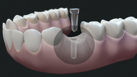 Dental Implant Dark stock footage