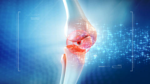 Knee Pain Animation stock footage