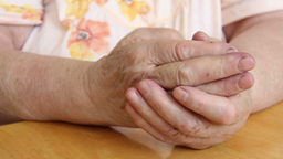 Painful old woman's hands. Arthritis Footage