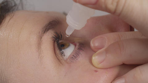 CLOSE UP: Woman Drops An Eyedrop Into Her Eye stock footage