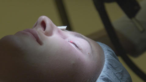 STEP 1 CLOSE UP: Cleaning an eyelid before the sur Footage