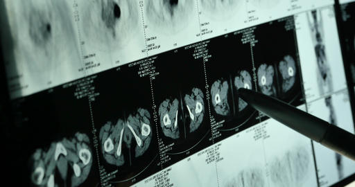 4k Doctors study skull brain X-ray film for analysis.health medical hospital Footage