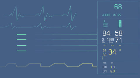 Heart Monitor Clean Footage