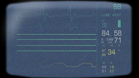 Heart Monitor Screen Stock Video Footage