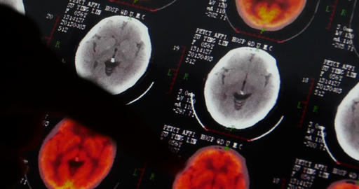 4k Doctors study head pet-ct skull brain scan X-ray film... Stock Video Footage