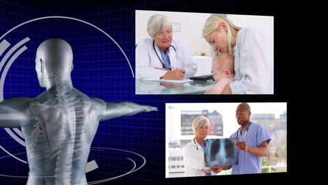 Medical team working on patients xrays Animation