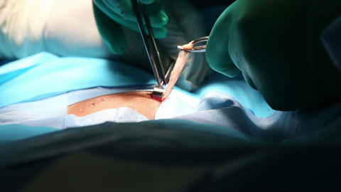 Surgical instruments using on hernia operation Stock Video Footage