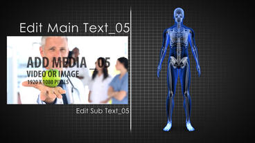Xray_Project After Effects Template
